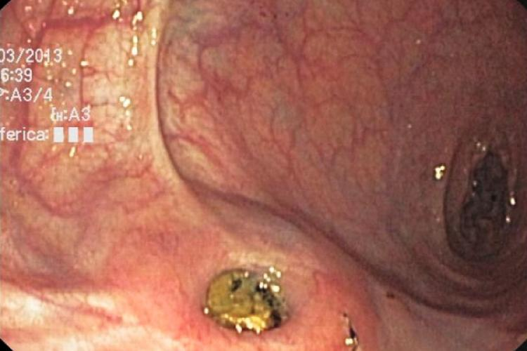 Endoscopic treatment of rectal pocket syndrome.